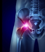stryker hip replacement recall