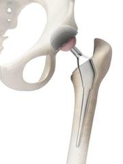 Stryker Hip Replacement Recall Metal On Metal Hip Failure